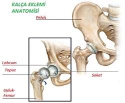 Uyluğun boynu kırıkları: tanı ve tedavisi